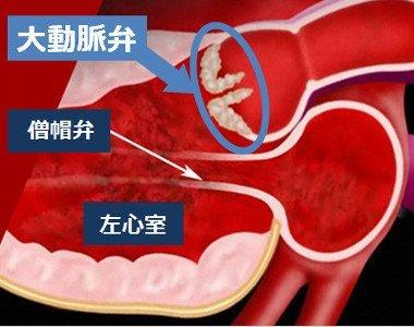 大動脈弁狭窄症とは
